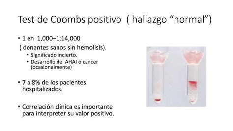 PPT   Test de Coombs Directo PowerPoint Presentation   ID ...