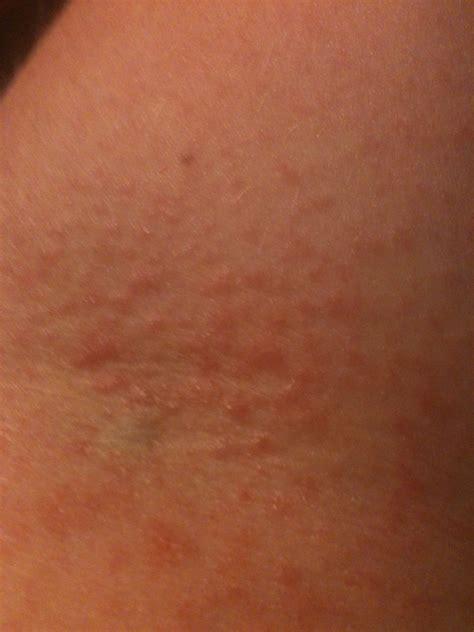 Prednisone rash on legs / Pharmacist Online