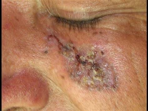 Prevención ante el cáncer de piel - YouTube
