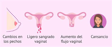Primeros signos de embarazo