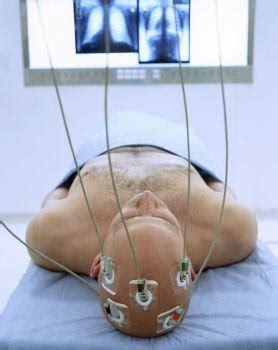 psicoUNEDizate: La estimulación cerebral profunda
