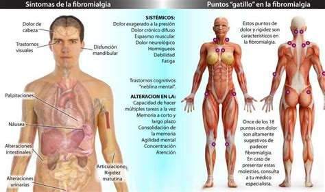 Puntos de presión para aliviar síntomas de la fibromialgia ...