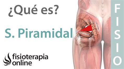¿Qué es el síndrome del músculo piramidal y cuáles son sus ...