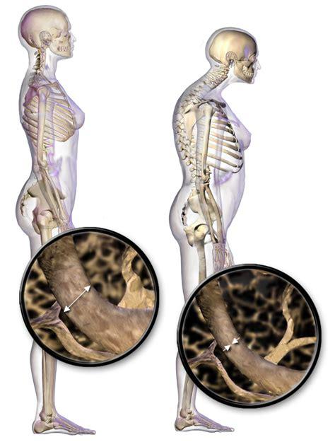 Què és i com es pot prevenir l'osteoporosi ? | CAP Passeig ...