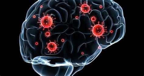 ¿Qué es la metástasis cerebral?