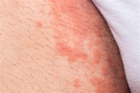 ¿Qué puede ser la micosis en la piel?   Tua Saúde