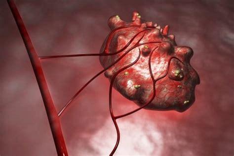 Quistes en los Ovarios ⇒ 【↓Síntomas y Tratamiento↓】