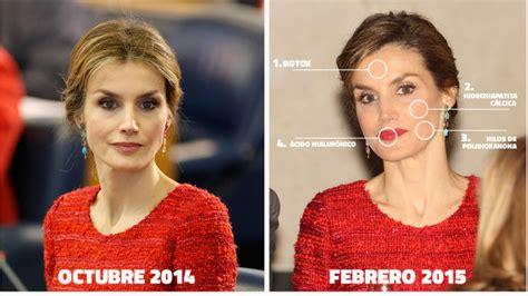 Reina Letizia, los retoques recientes que se ha hecho ...