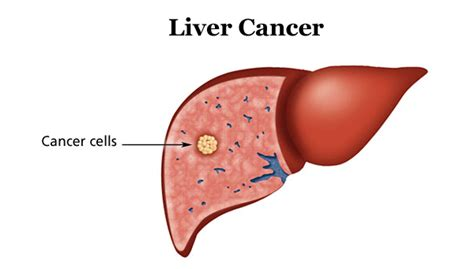 Related Keywords & Suggestions for human liver cancer