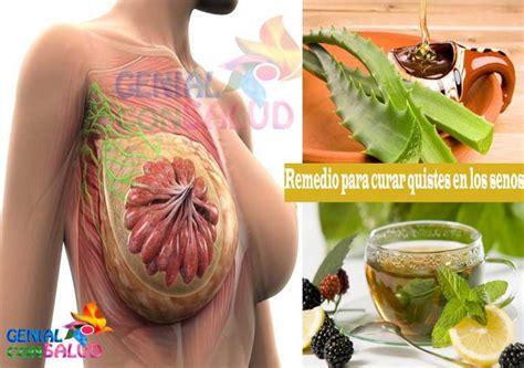 Remedio para curar quistes en los senos   Genial Con salud