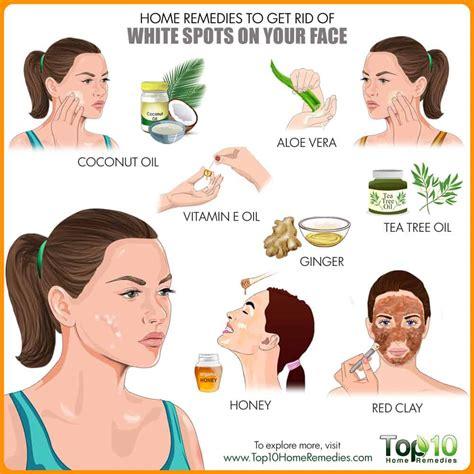 Remedios caseros para Deshacerse de las Manchas Blancas en ...