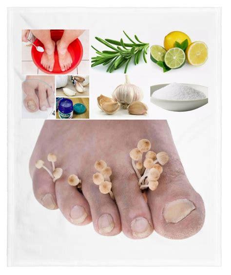 Remedios caseros para eliminar los hongos en los pies ...