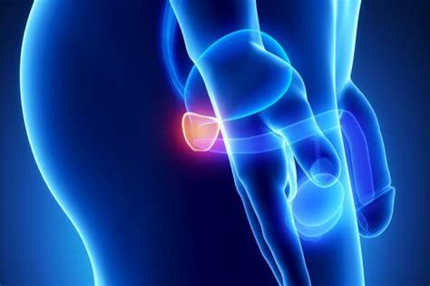 Remedios caseros para la próstata inflamada   7 pasos