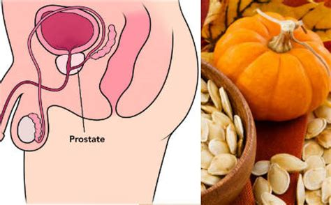 Remedios caseros para la próstata inflamada   Muchos Trucos