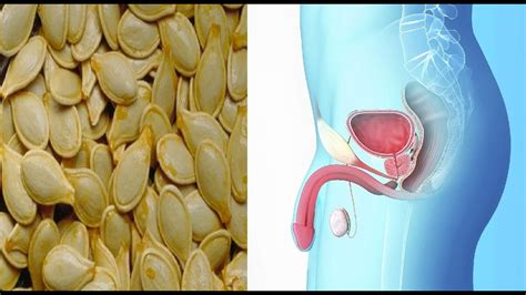 Remedios Caseros para La Prostata Inflamada O Prostatitis ...