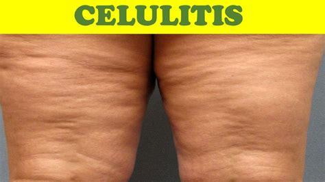 REMEDIOS CASEROS TIPS   CELULITIS  eliminar celulitis ...