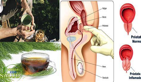 Remedios naturales para la próstata inflamada   Genial Con ...