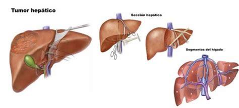 Resección hepática. Operación de hígado por metástasis ...