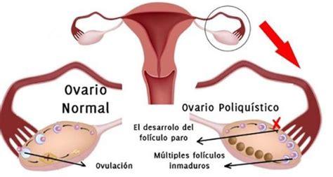 Retraso de la menstruación: Causas posibles - Blogmujeres.com