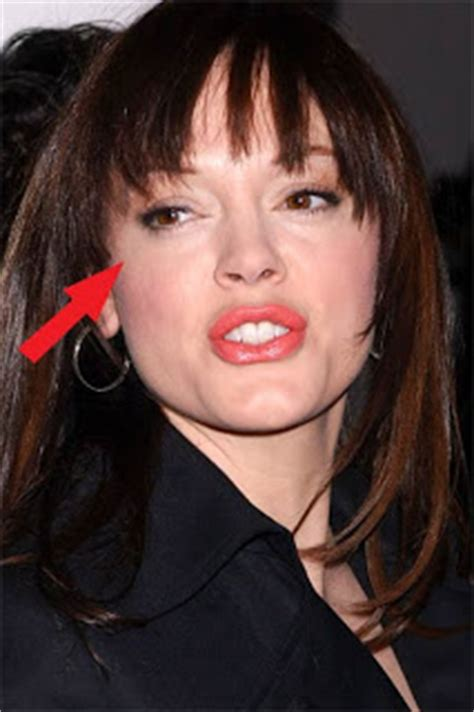 Rose McGowan Accident   Celebrity Pictures