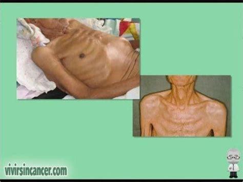 ¿Sabe Vd. qué sintomas puede producir un cáncer de esófago ...