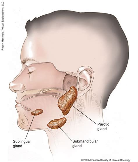 Salivary Gland Cancer: Medical Illustrations | Cancer.Net