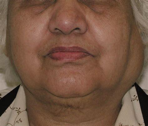 salivary glands http quizlet com 2941794 salivary glands ...