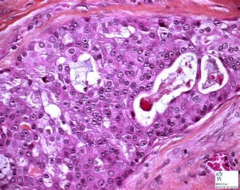 salivary mucoepidermoid carcinoma - Humpath.com - Human ...