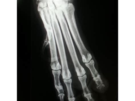 Sarcoma de Tejidos Blandos SUBUNGUAL en el perro   Clinica ...