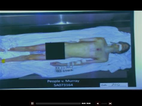 Screenshot of Autopsy Photo