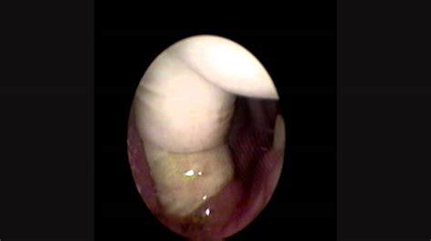 Sialolitiasis (Litiasis Submaxilar).wmv - YouTube