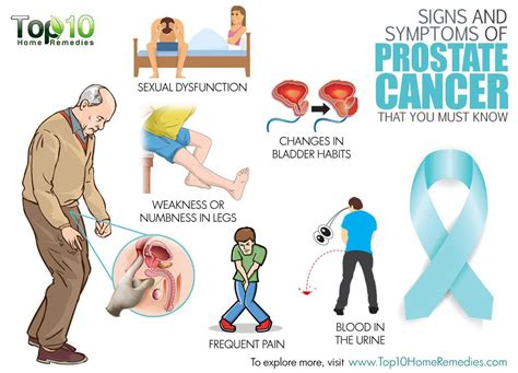 Signs and Symptoms of Prostate Cancer that You Must Know ...