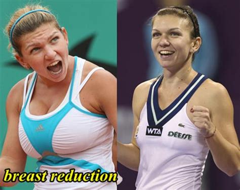 Simona Halep Plastic Surgery Before And After Breast ...