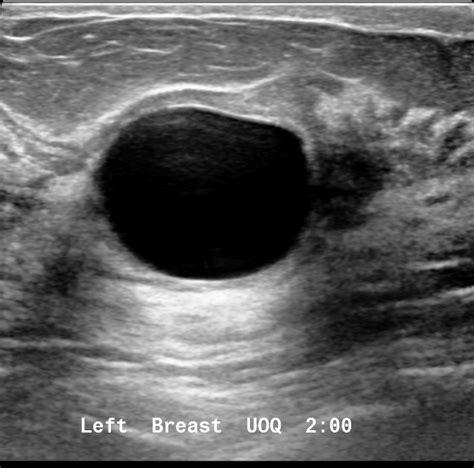 Simple breast cyst   Image   Radiopaedia.org