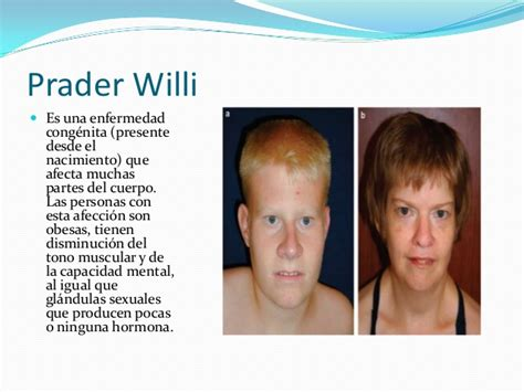 Sindrome Angelman vs Sindrome Prader Willi