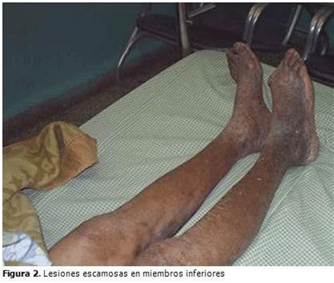 Síndrome de POEMS. Presentación de un caso