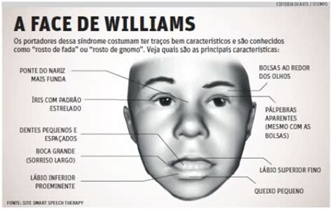 Síndrome de Williams | causas, sintomas, tratamento, o que ...