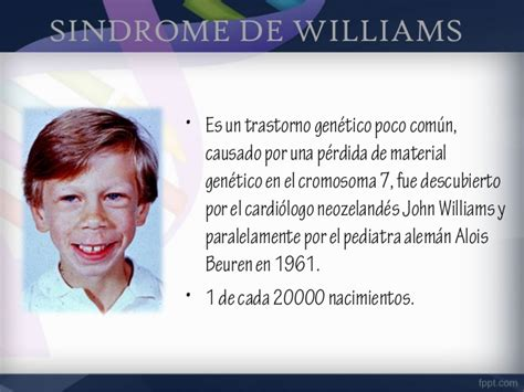 Sindrome de williams