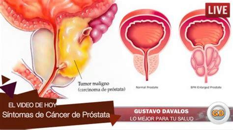 Síntomas de Cáncer de Próstata   Síntomas de Prostatitis ...