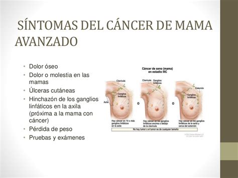 Sintomas De Cancer Pictures to Pin on Pinterest   ThePinsta