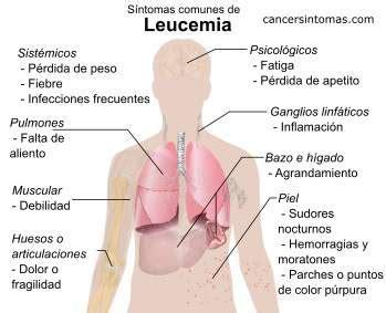Síntomas de leucemia (cáncer en la sangre): primeros ...