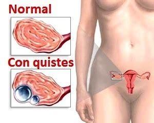 Síntomas de quistes en los ovarios   La Guía de las Vitaminas