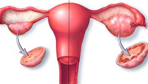 Sintomas quistes en los ovarios   Natura Sapiens