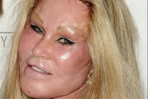 Six Worst Celebrity Cosmetic Surgery DISASTERS - Celeb Bistro