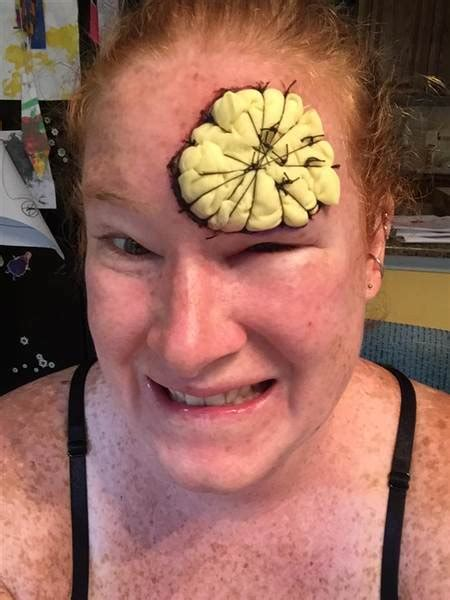 Skin cancer: Mom shares harrowing recovery from melanoma ...