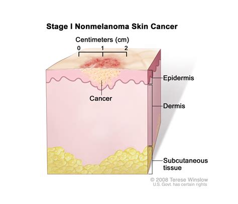 Skin Cancer Treatment (PDQ®)—Patient Version - National ...