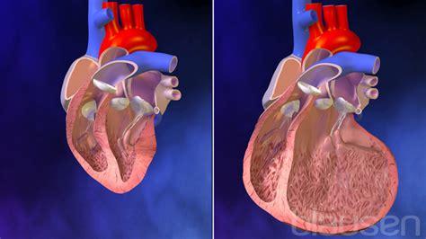 울혈성 심부전 | Blausen Medical