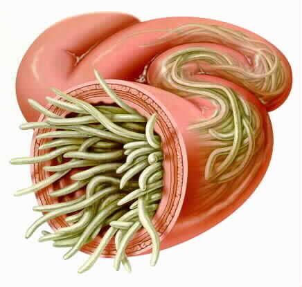 Паразиты (гельминты) и их влияние на здоровье человека ...