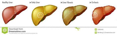 Stage of Liver Cancer stock illustration. Illustration of ...