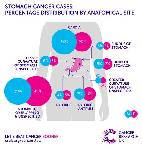 Stomach cancer incidence statistics | Cancer Research UK